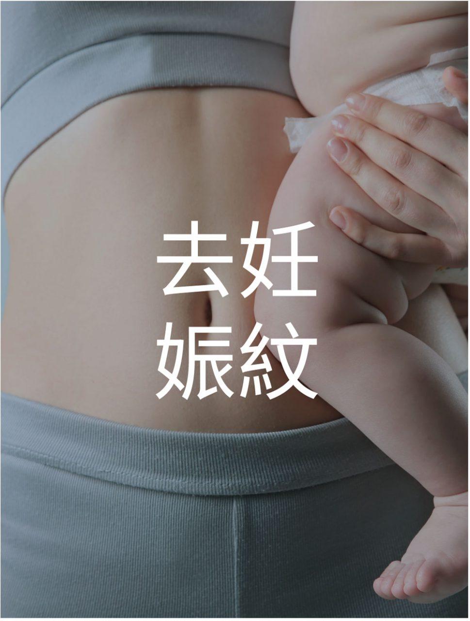 產後微電流去妊娠紋緊緻護理